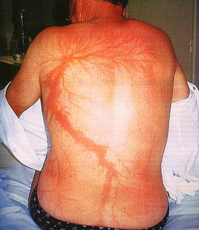 Ожог на теле человека фото