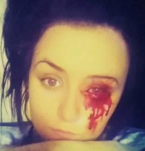 Марни Харви - из глаз, ушей и носа течет кровь.