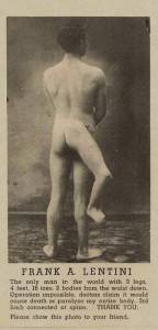 Третья нога досталась Фрэнку Лентини от брата-близнеца
