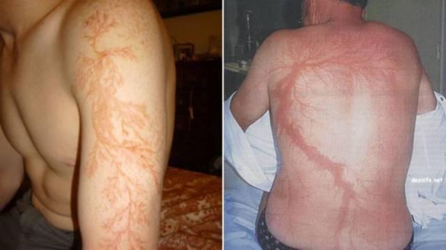 Рисунки на коже после ударов молнии