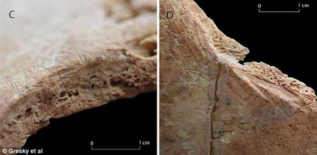 В отверстиях образовалась новая костная ткань.