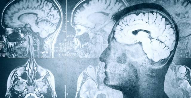 Ученые нашли способ «стирать» воспоминания
