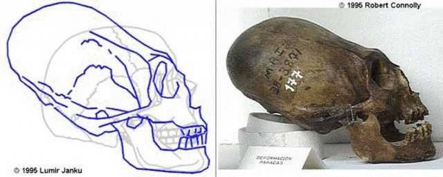 Вытянутый череп.